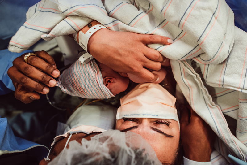 Birth Photography -  a new mother holds her newborn baby in her arms, surgery team also lean over to admire baby